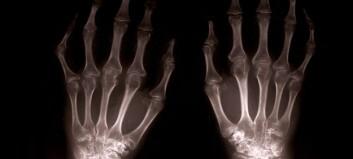 Mulig sammenheng mellom overvekt og håndartrose
