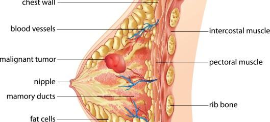 Lymfødembehandling - ingen sikre konklusjoner