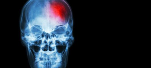 Unngå inaktivitet etter hjerneslag