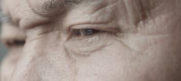 Mange får demens etter slag, men hvorfor?