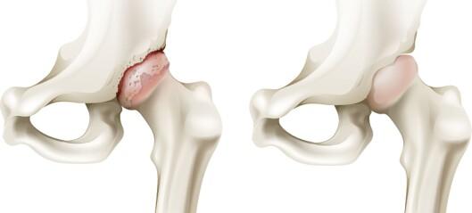 Behandlingsanbefalinger for kne- og hofteartrose
