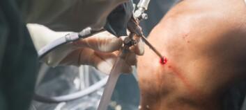 Artroskopi anbefales ikke ved degenerative forandringer i knær