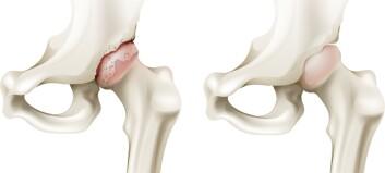 Kan kunstig brusk stoppe utviklingen av artrose?