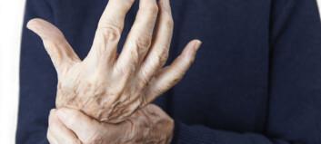 Fedme og røyking svekker bedring av leddgikt