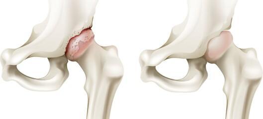 Oppdatert behandlingsanbefaling ved artrose