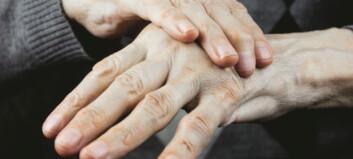 Henvises til kirurgi for tommelartrose tross milde smerter