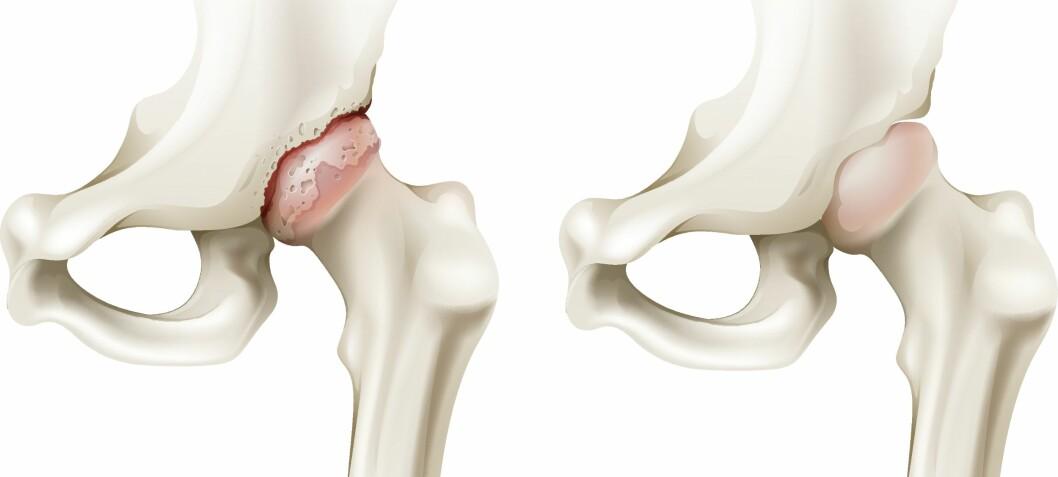 Effekt av landbasert treningsterapi  for pasienter med hofteleddsartrose