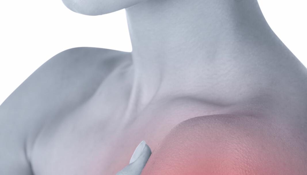 Skuldersmerter: Mer fysikalsk behandling - mindre kirurgi