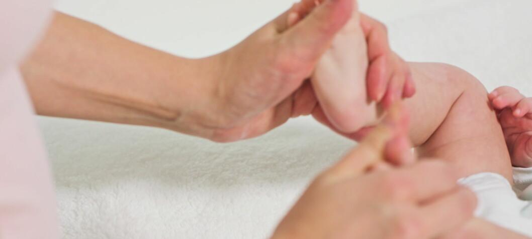 Fysioterapeuters erfaringer fra samarbeid med foreldre i behandlingen av barn med medfødt klumpfot - en kvalitativ studie
