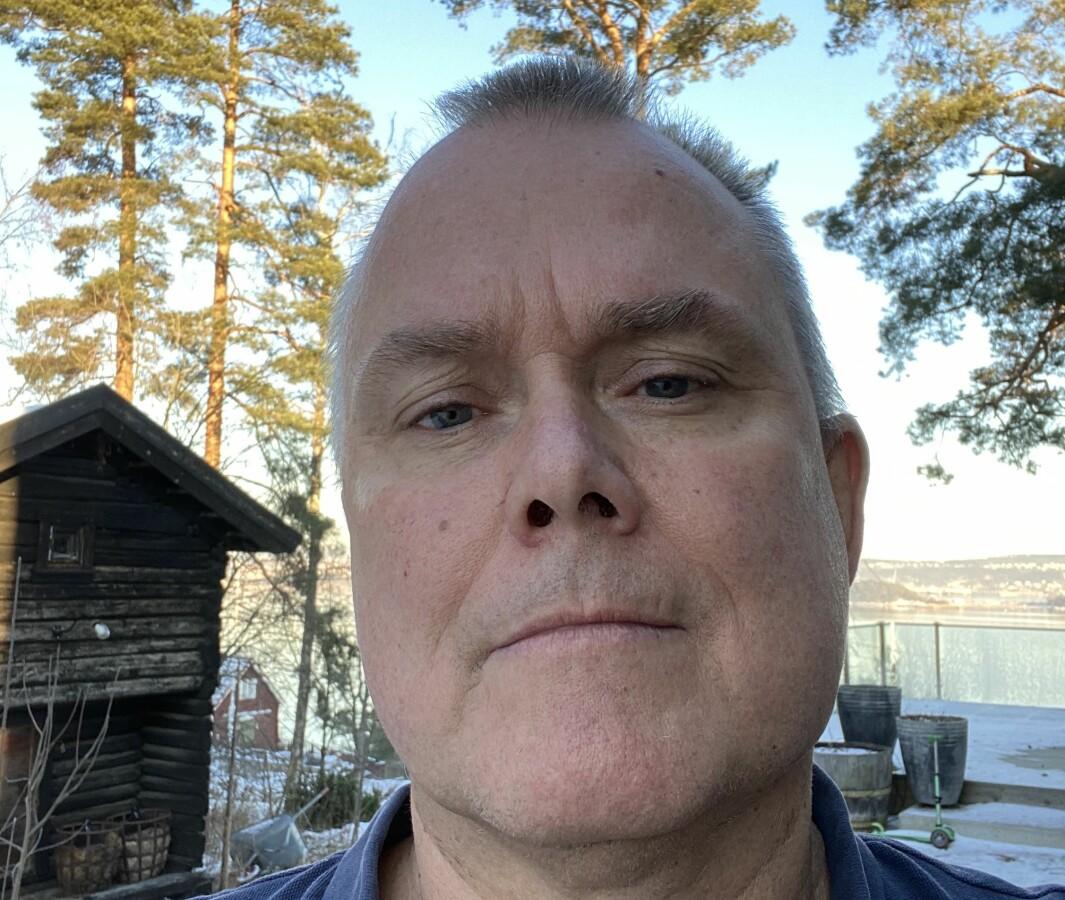 Covid-19-pasient Stein Johansen.