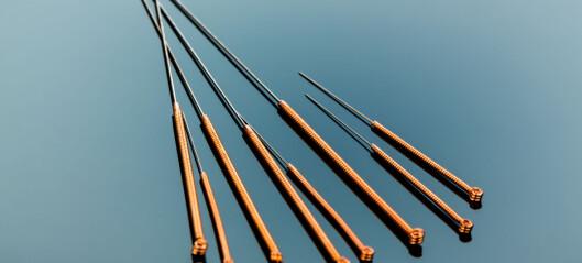 Når kan man anbefale akupunktur i helsetjenesten?